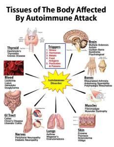 autoimmune attack